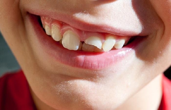 răng bị gãy còn chân răng phải làm sao - 1