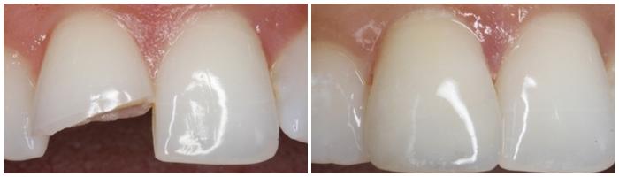 răng bị gãy còn chân răng phải làm sao - 2