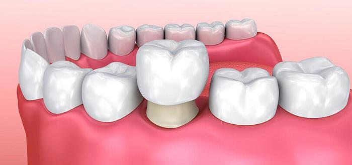 răng bị gãy còn chân răng phải làm sao - 3