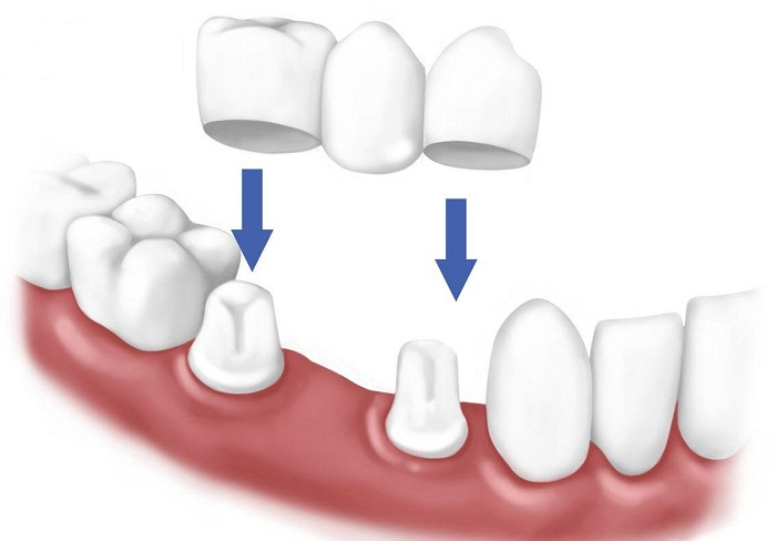 răng bị gãy còn chân răng phải làm sao - 4
