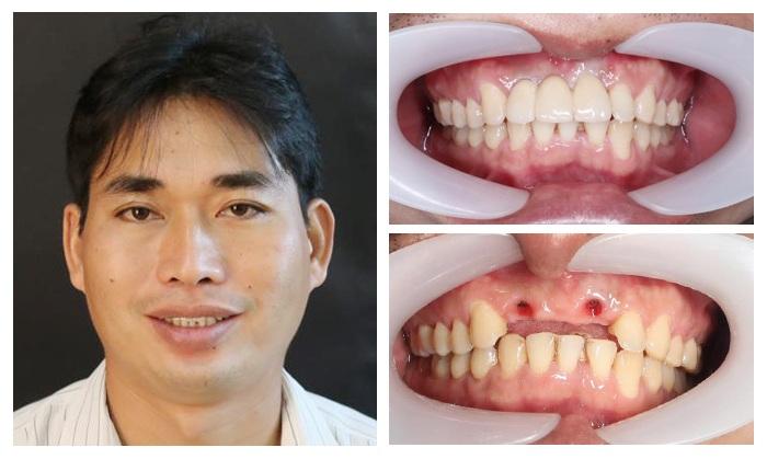 răng bị gãy còn chân răng phải làm sao - 5