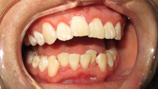 Răng cửa mọc lệch phải làm sao để đều đặn và thẳng hàng?