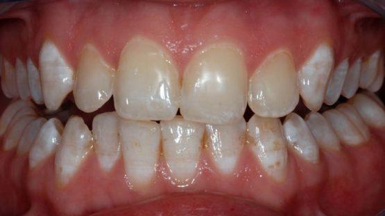 Răng nhiễm fluor là gì? Cách nào giúp điều trị hiệu quả?