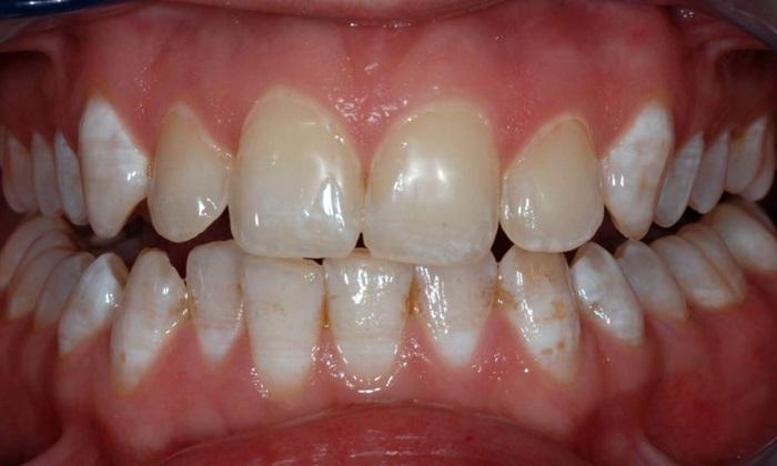 Răng nhiễm flour là gì? Cách nào giúp điều trị hiệu quả? 1