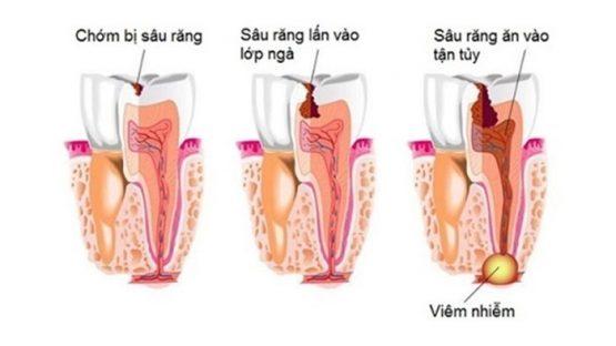 Áp xe chân răng – Nguyên nhân và cách chữa trị nhanh chóng, hiệu quả?