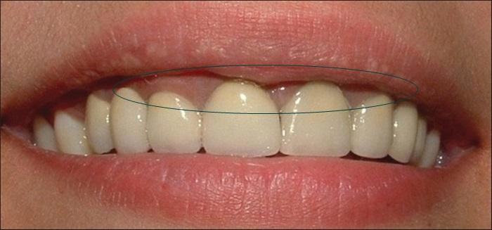 Trồng răng sứ Titan có tốt không | Chia sẻ từ chuyên gia 4