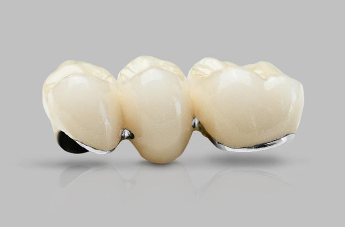Răng sứ Ceramco là gì? Chất lượng và thẩm mỹ có bền đẹp không? 1