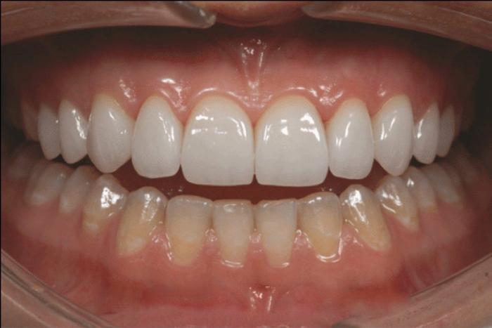 Đắp răng giả bằng kỹ thuật nha khoa hiện đại, thẩm mỹ cao 3