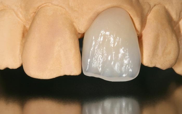 Các loại răng sứ của Đức chất lượng và thẩm mỹ tốt nhất 1