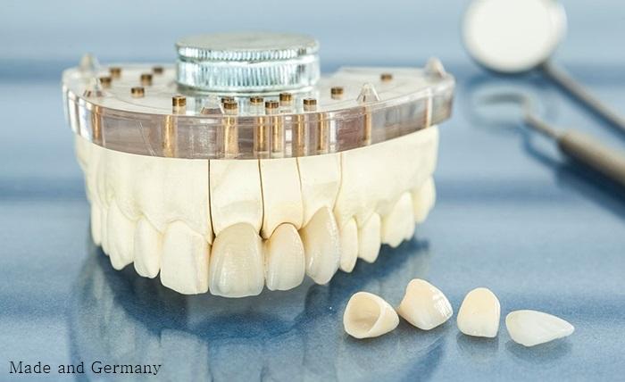 Các loại răng sứ của Đức chất lượng và thẩm mỹ tốt nhất 2