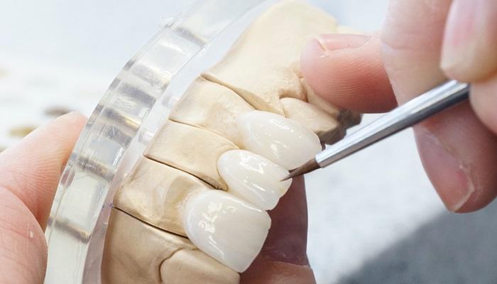 Địa chỉ làm răng ở đâu tốt và uy tín - 4 Tiêu chí giúp bạn lựa chọn 3