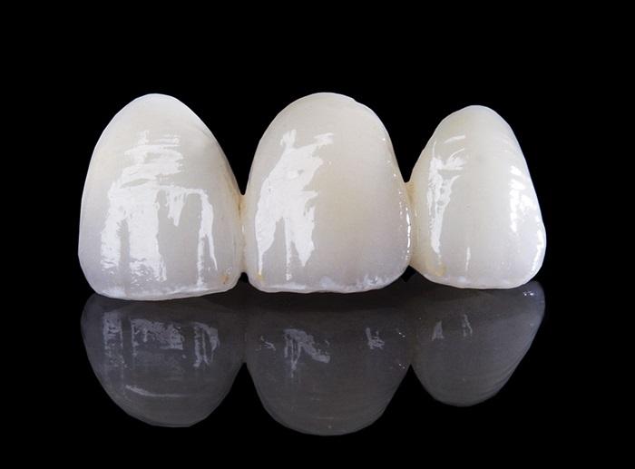 Răng giả cao cấp Zirconia có ưu điểm gì nổi bật? 2