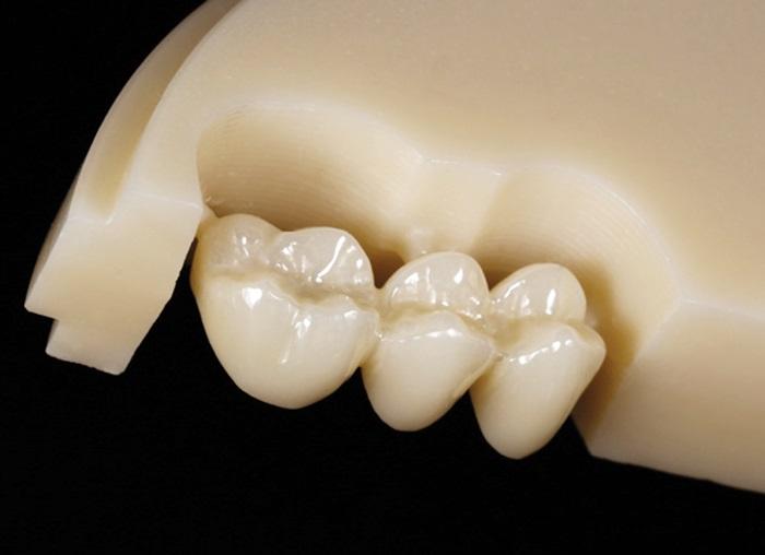 Chất liệu răng giả - Chọn phục hình loại nào tốt nhất? 2