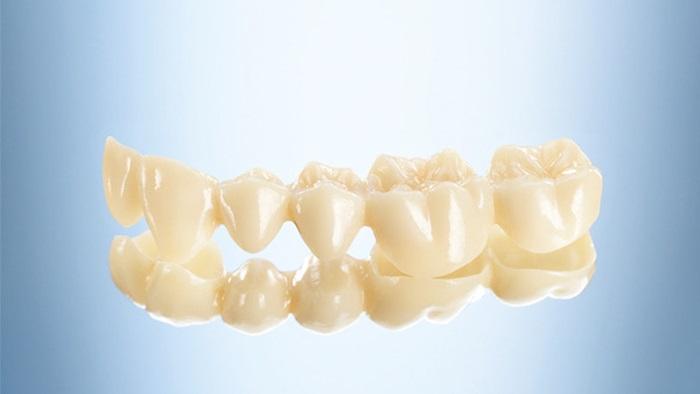 Răng sứ Lava – Giải pháp phục hình răng sứ siêu bền đẹp! 2