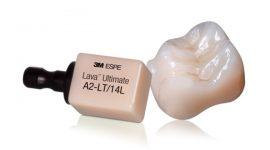 Răng sứ Lava – Giải pháp phục hình răng sứ siêu bền đẹp!