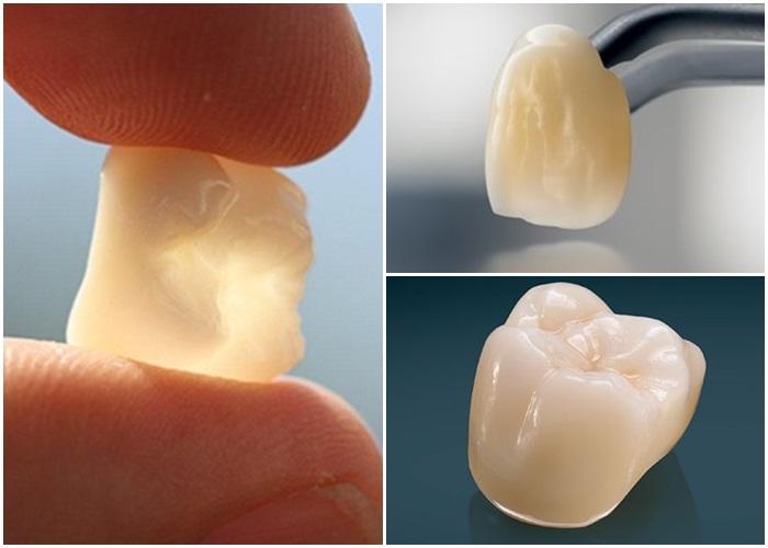 Răng sứ Lava – Giải pháp phục hình răng sứ siêu bền đẹp! 4