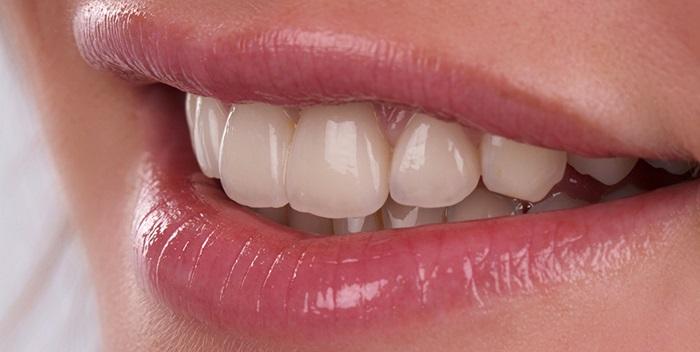 Răng sứ Vita – Sự lựa chọn phục hình răng sứ đẹp hoàn hảo 1
