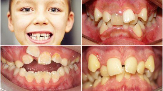 Răng trẻ mọc lệch phải làm sao? Sửa thế nào cho đều đẹp?