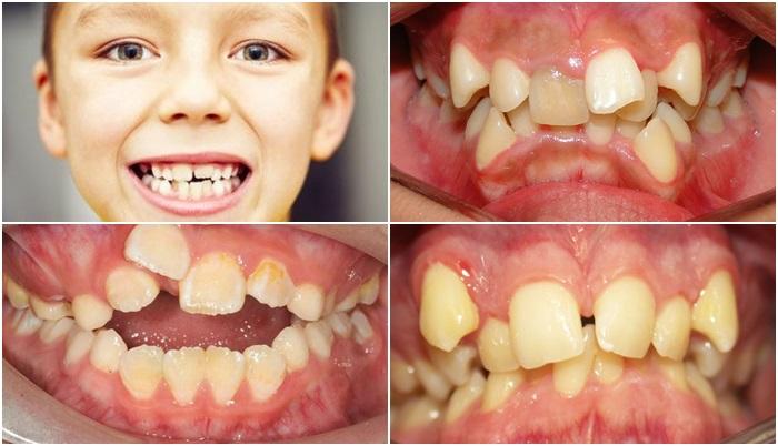 Răng trẻ mọc lệch phải làm sao? Sửa thế nào cho đều đẹp? 1