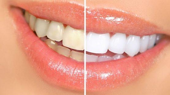 Tẩy trắng răng có nên không? Thắc mắc cần giải đáp