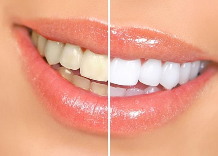 Tẩy men răng là gì & những thắc mắc thường gặp 1