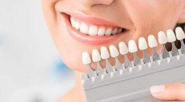 Giới thiệu nha khoa tẩy trắng răng ở đâu tốt và uy tín tại Hà Nội