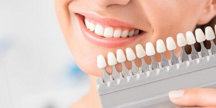 Tẩy trắng răng ở đâu tốt và uy tín tại Hà Nội – Nơi nhiều người đã chọn 1