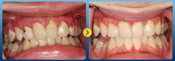hàn trám răng khắc phục răng bị đen
