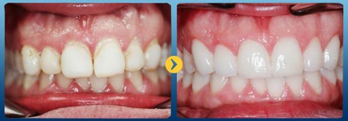 hàn trám răng - khắc phục răng xỉn màu