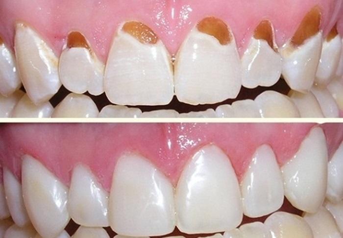 Trám cổ chân răng – Từ A-Z những thông tin bạn cần biết khi thực hiện 2