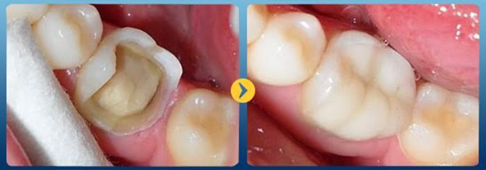 Trám răng cấm – Cách phục hình và bảo vệ răng đơn giản, nhanh chóng 2