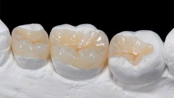 Hàn trám răng – Giải pháp phục hình răng bị sứt, mẻ, vỡ nhanh chóng