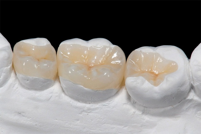Trám răng cấm – Cách phục hình và bảo vệ răng đơn giản, nhanh chóng 4