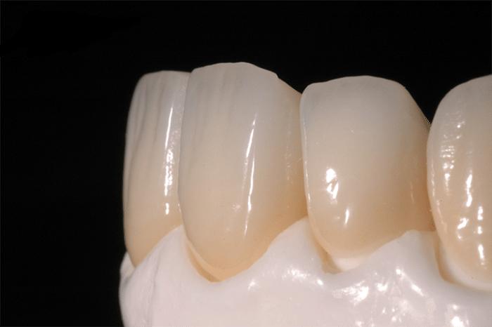 Trồng răng sứ mất bao lâu thì hoàn thành, có thể ăn nhai bình thường? 3