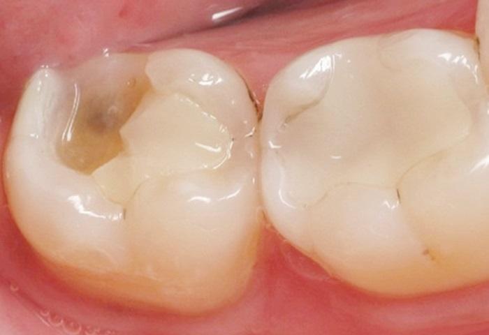 Trám lại răng khi miếng trám bị hỏng bằng cách nào hiệu quả, bền lâu? 1