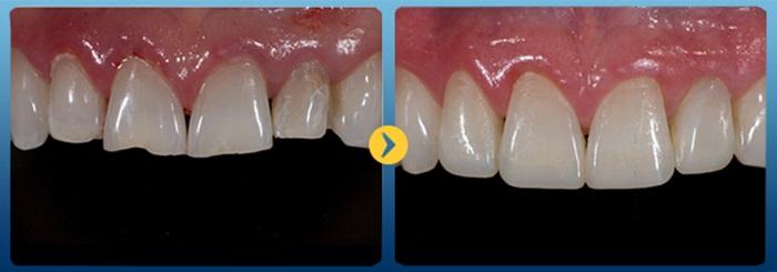trám răng khắc phục tình trạng răng xấu