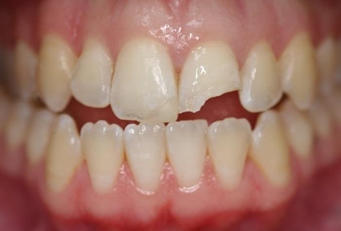 Trám răng bị gãy - Phục hình răng thẩm mỹ nhanh chóng chỉ sau 15 phút 1