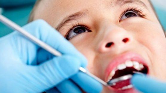 Trám răng cho bé ở đâu tốt, an toàn và hiệu quả cao nhất?