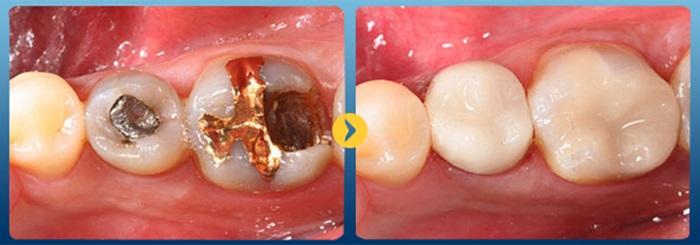 Trám răng cấm – Cách phục hình và bảo vệ răng đơn giản, nhanh chóng 3