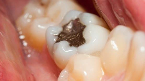 Trám răng cấm – Cách phục hình và bảo vệ răng đơn giản, nhanh chóng