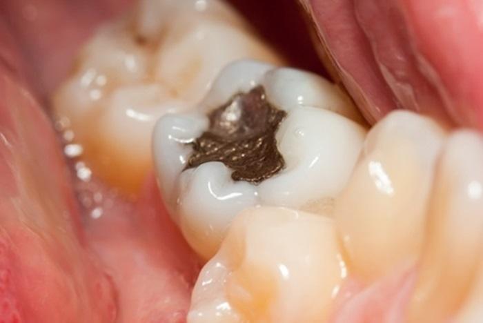 Trám răng cấm – Cách phục hình và bảo vệ răng đơn giản, nhanh chóng 1