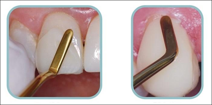 Trám răng bị gãy - Phục hình răng thẩm mỹ nhanh chóng chỉ sau 15 phút 3