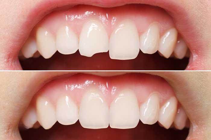 Phục hình răng & những phương pháp tái tạo thẩm mỹ răng hiệu quả 2