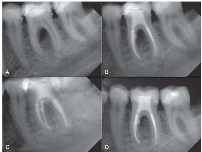 Trám răng lấy tủy – Những mặt lợi và hại mà bạn nên biết 3