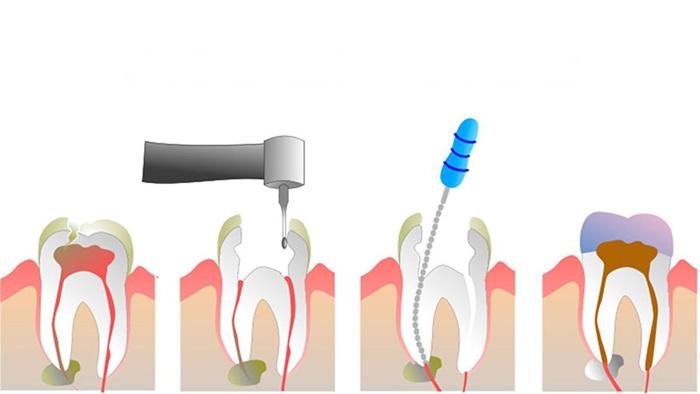 Răng sâu vào tủy – Dấu hiệu nhận biết và cách chữa trị hiệu quả