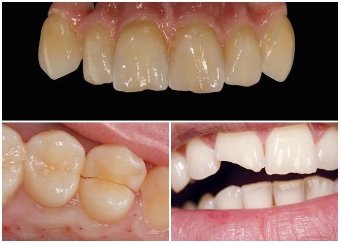 trám răng sứ - 1