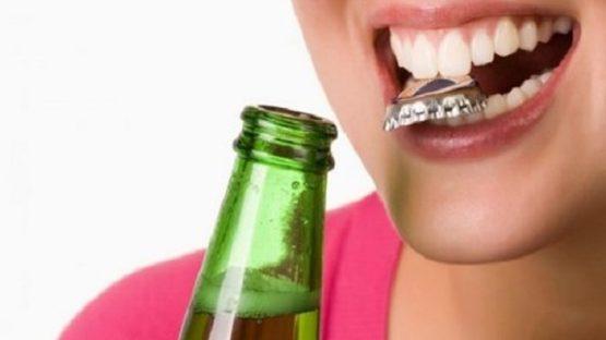 Trám răng sứ có được không – Giải đáp từ chuyên gia