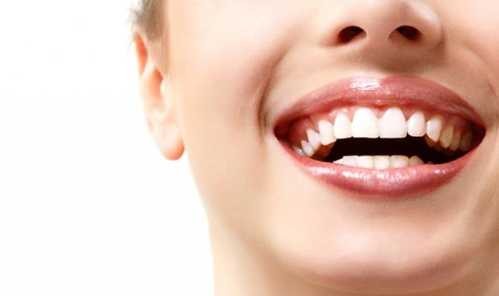 Trám răng thẩm mỹ - Phục hồi răng ĐẸP, nhanh chóng và an toàn 1