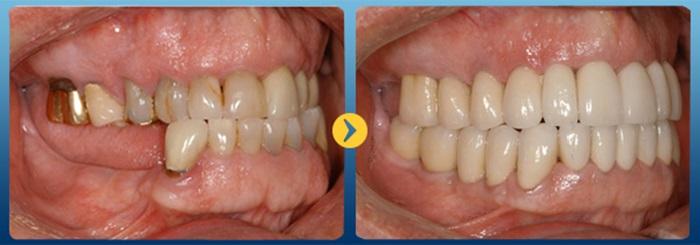 Làm răng giả an toàn bằng những kỹ thuật tiên tiến nhất