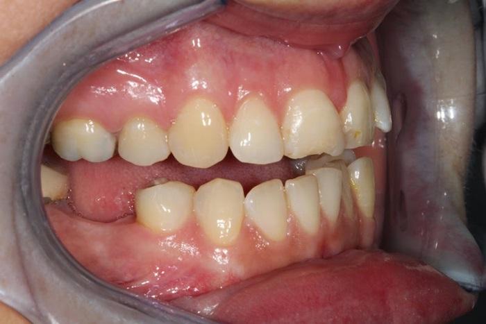 Trồng răng cấm bằng phương pháp nào hiệu quả nhất? 2